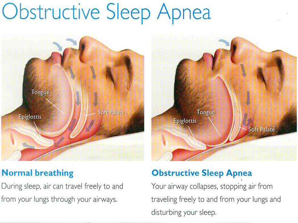  Sleep apnoea is associated with an increased risk of ◦ Cardiovascular disease ◦ Stroke ◦ High Blood pressure ◦ Diabetes ◦ Arrhythmias ◦ Sleep deprived car accidents