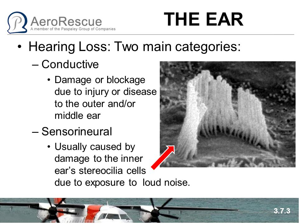 THE EAR Hearing Loss: Two main categories: –Conductive Damage or blockage due to injury or disease to the outer and/or middle ear –Sensorineural Usual