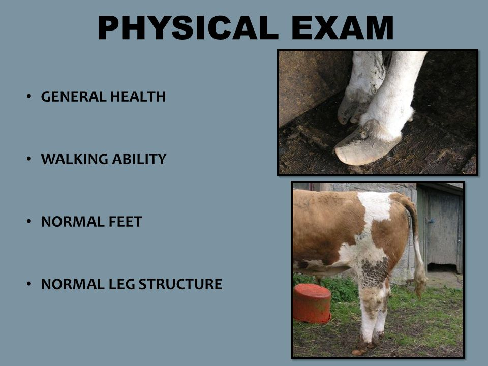 GENERAL HEALTH WALKING ABILITY NORMAL FEET NORMAL LEG STRUCTURE PHYSICAL EXAM