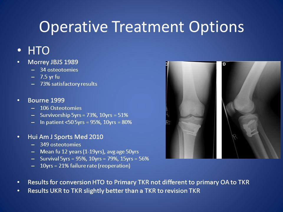 Operative Treatment Options HTO Morrey JBJS 1989 – 34 osteotomies – 7.5 yr fu – 73% satisfactory results Bourne 1999 – 106 Osteotomies – Survivorship 5yrs = 73%, 10yrs = 51% – In patient <50 5yrs = 95%, 10yrs = 80% Hui Am J Sports Med 2010 – 349 osteotomies – Mean fu 12 years (1-19yrs), avg age 50yrs – Survival 5yrs = 95%, 10yrs = 79%, 15yrs = 56% – 10yrs = 21% failure rate (reoperation) Results for conversion HTO to Primary TKR not different to primary OA to TKR Results UKR to TKR slightly better than a TKR to revision TKR