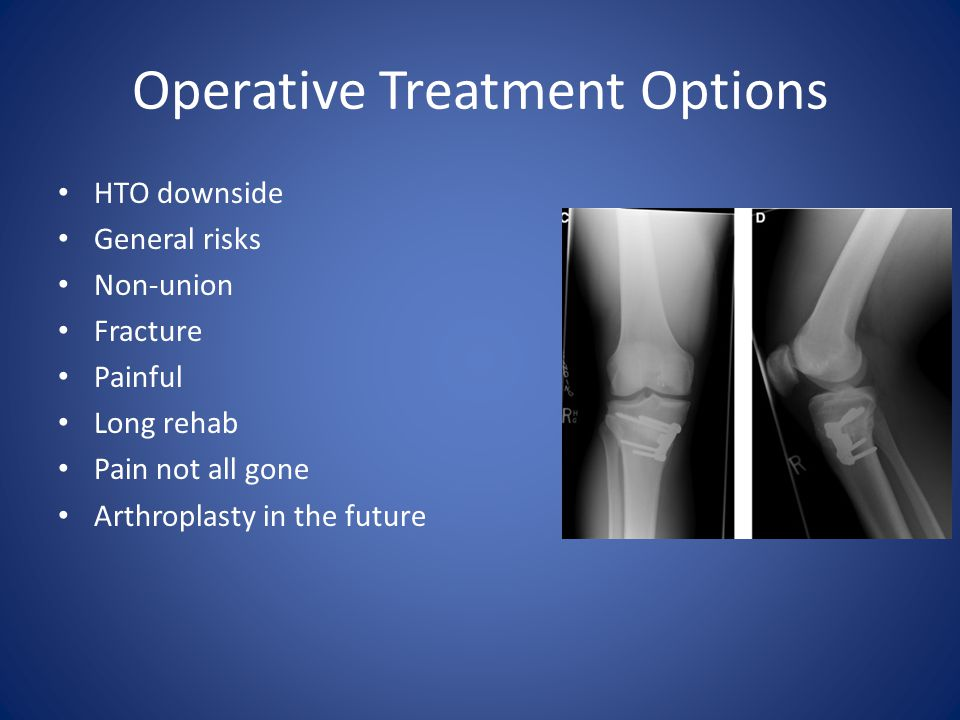 Operative Treatment Options HTO downside General risks Non-union Fracture Painful Long rehab Pain not all gone Arthroplasty in the future