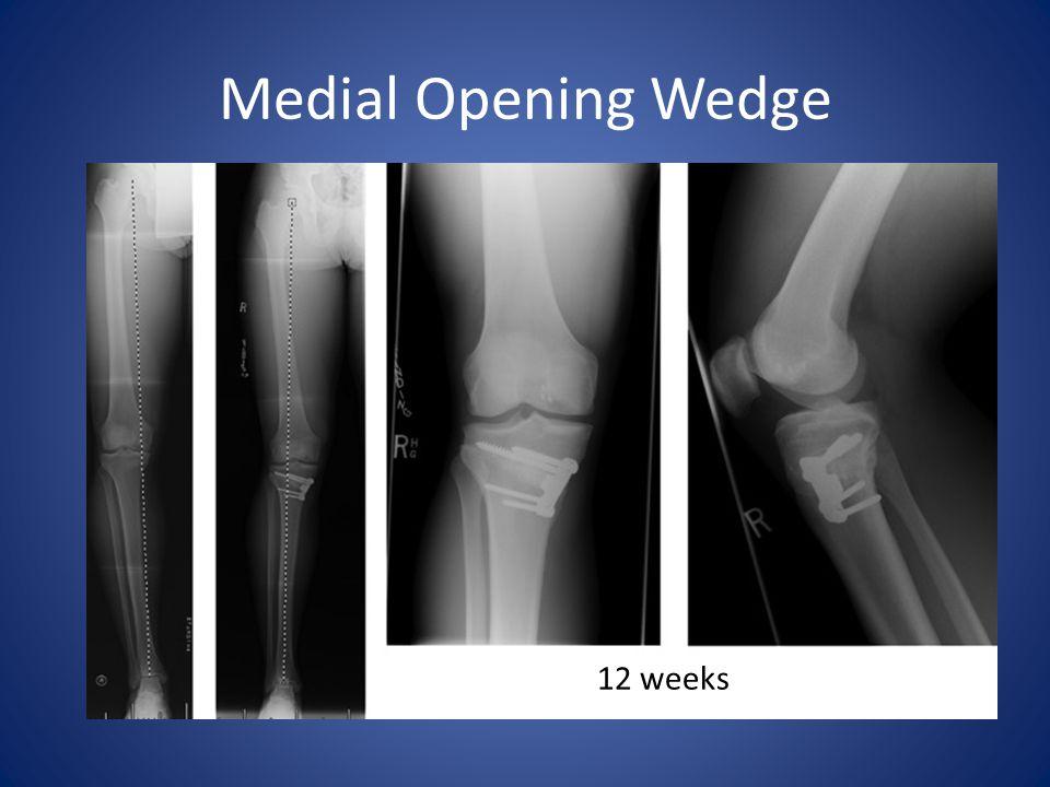 12 weeks Medial Opening Wedge