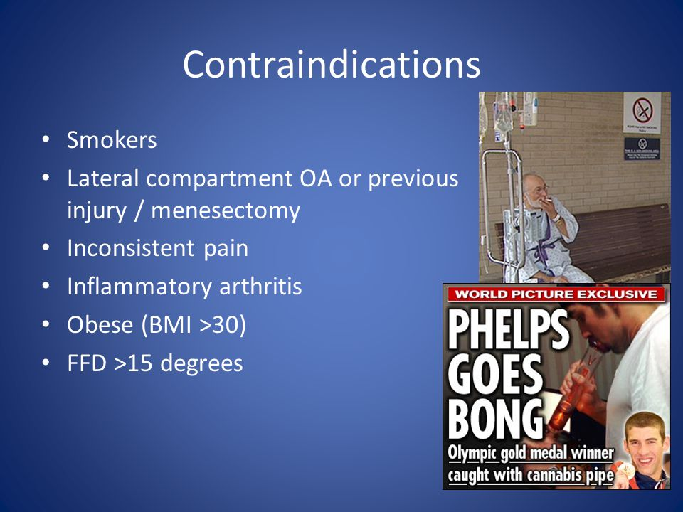 Contraindications Smokers Lateral compartment OA or previous injury / menesectomy Inconsistent pain Inflammatory arthritis Obese (BMI >30) FFD >15 degrees