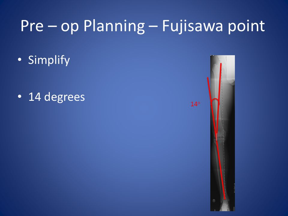 Pre – op Planning – Fujisawa point Simplify 14 degrees 14 o