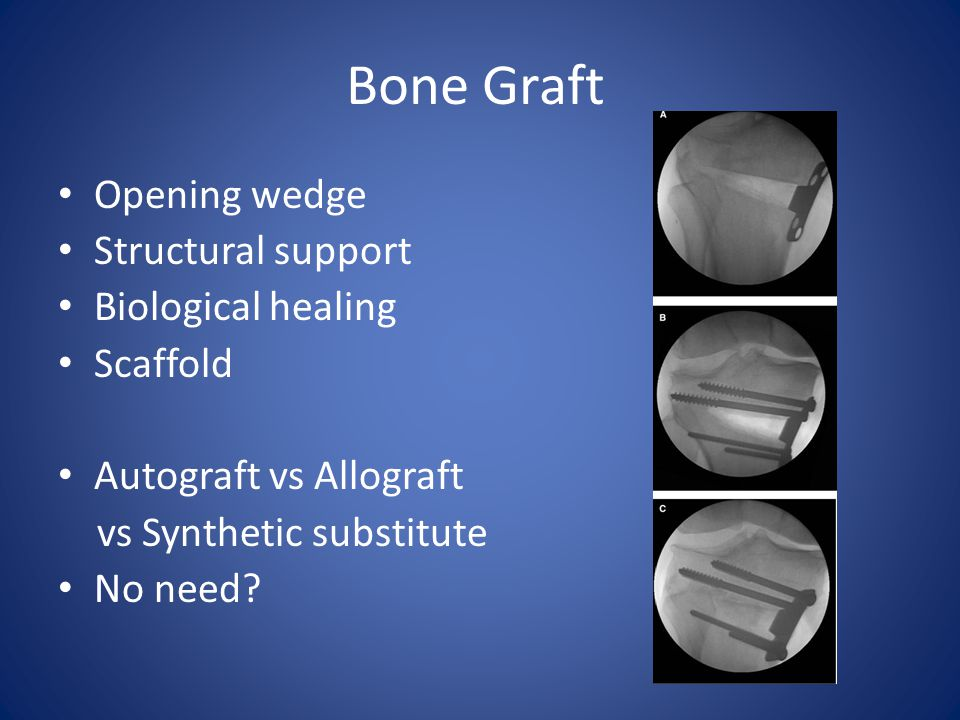 Bone Graft Opening wedge Structural support Biological healing Scaffold Autograft vs Allograft vs Synthetic substitute No need