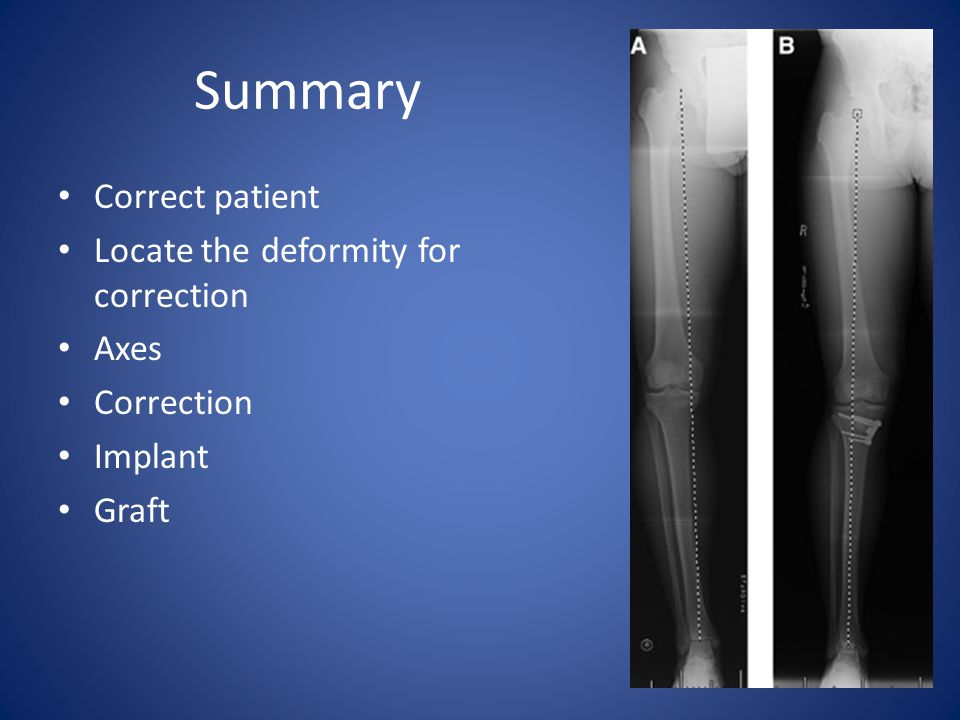 Summary Correct patient Locate the deformity for correction Axes Correction Implant Graft