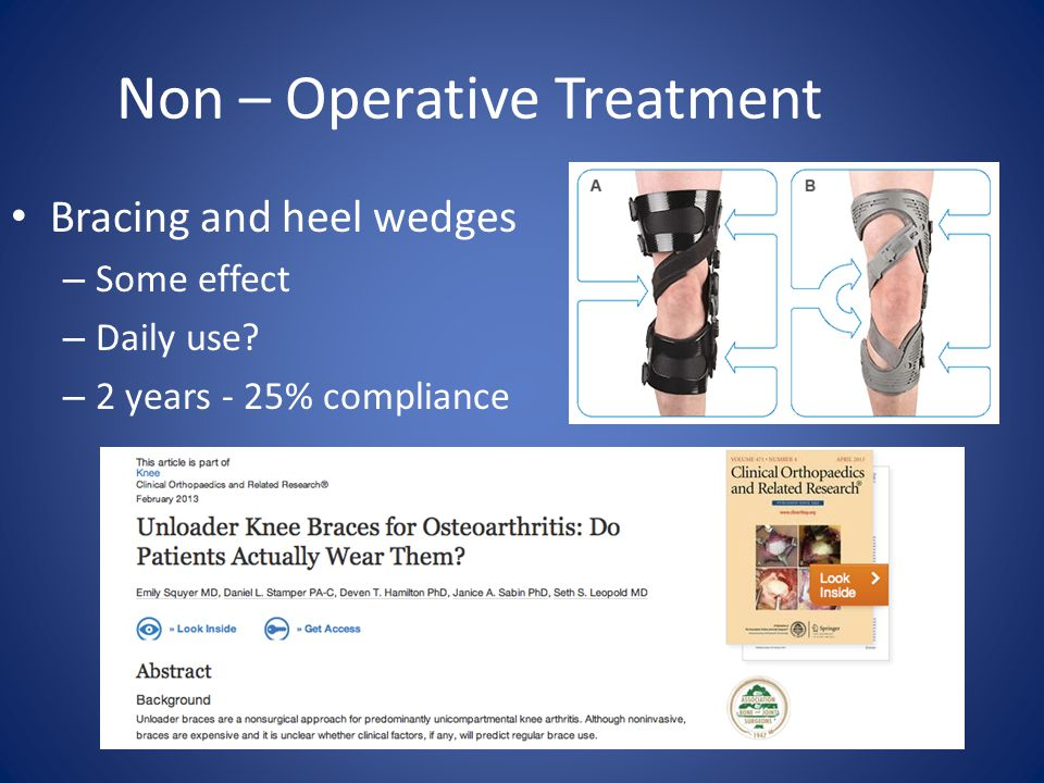 Non – Operative Treatment Bracing and heel wedges – Some effect – Daily use.