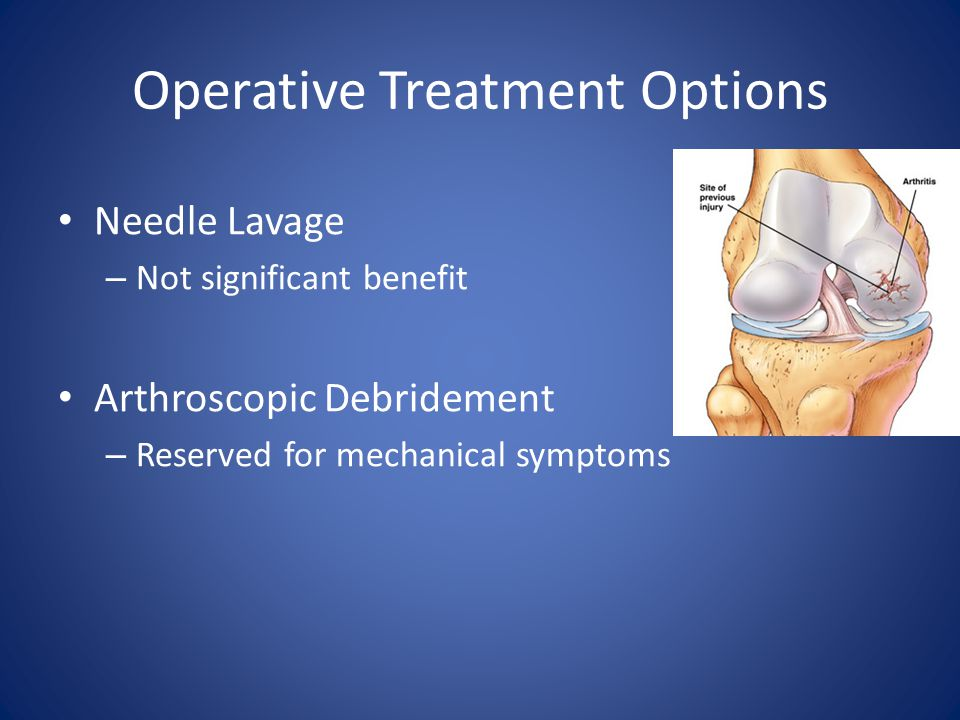 Operative Treatment Options Needle Lavage – Not significant benefit Arthroscopic Debridement – Reserved for mechanical symptoms