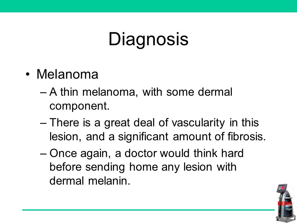 What is your diagnosis No collagen holes No displaced blood plus blush Dermal melanin