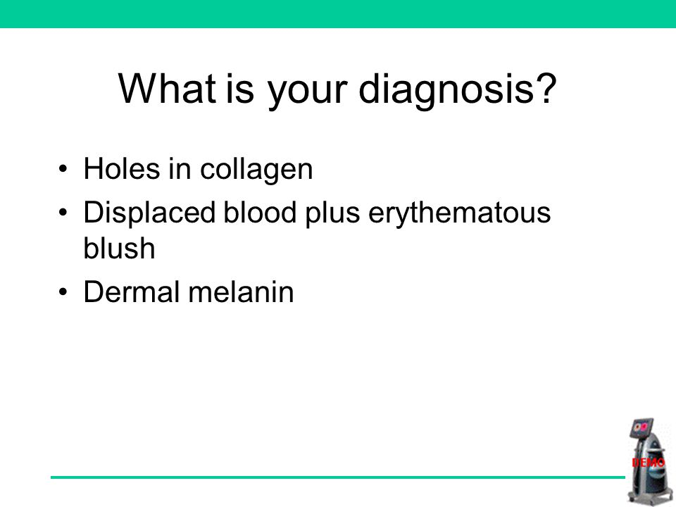Yes. This is shown in several colours, showing that the lesion has a large dermal component.