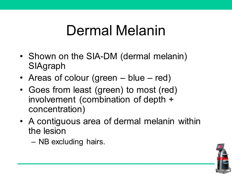 Feature checklist The three features which research has identified as the most useful in melanoma diagnosis are as follows: –Dermal melanin –Displaced blood with erythematous blush –Holes in collagen These features will now be defined.