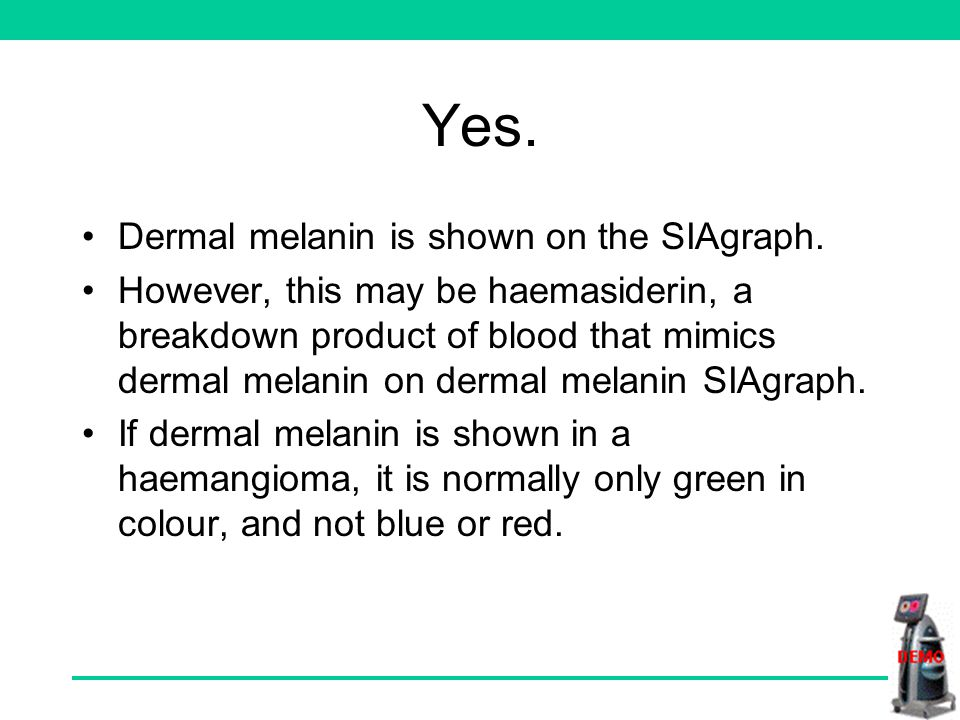 Is dermal melanin present in this lesion YesNo