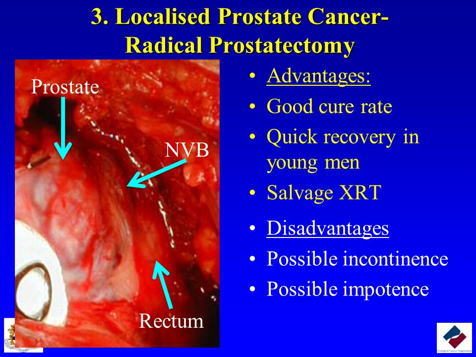 3. Localised Prostate Cancer- Radical Prostatectomy Advantages: Good cure rate Quick recovery in young men Salvage XRT Disadvantages Possible incontin