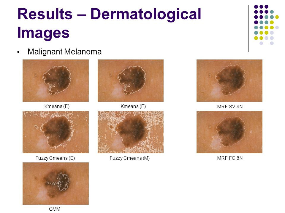 Results – Dermatological Images Malignant Melanoma Fuzzy Cmeans (E)Fuzzy Cmeans (M) Kmeans (E) GMM MRF SV 4N MRF FC 8N