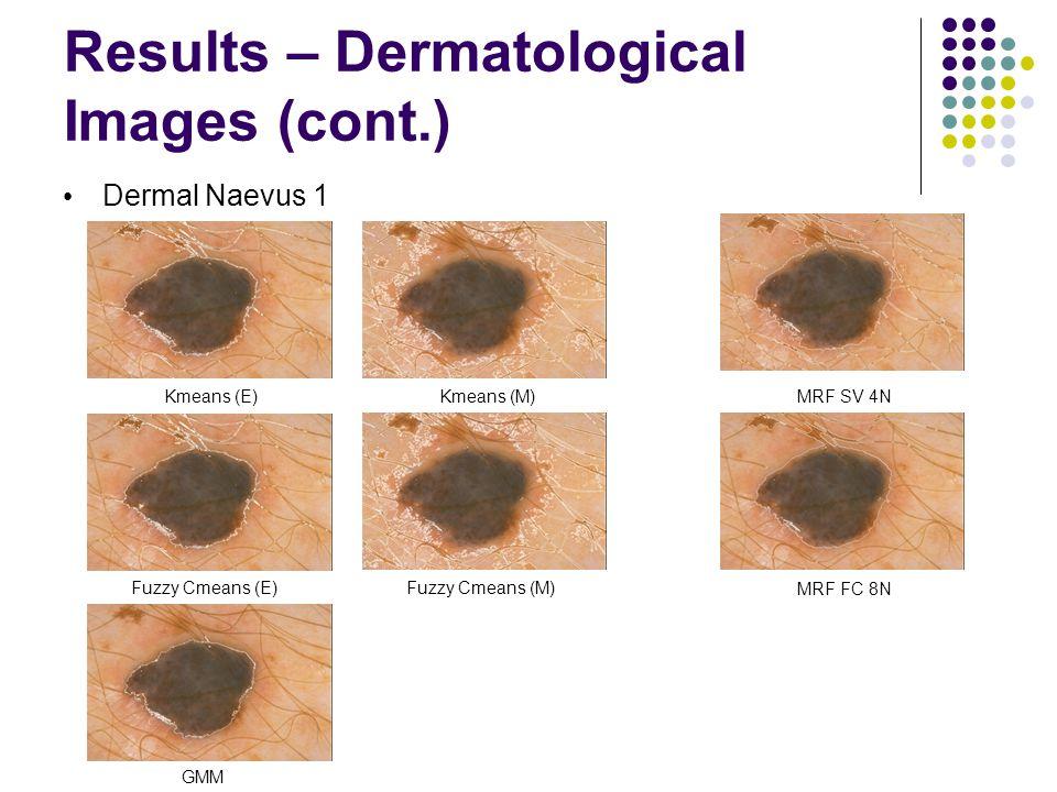 Results – Dermatological Images (cont.) Dermal Naevus 1 Fuzzy Cmeans (E)Fuzzy Cmeans (M) Kmeans (E)Kmeans (M) GMM MRF SV 4N MRF FC 8N