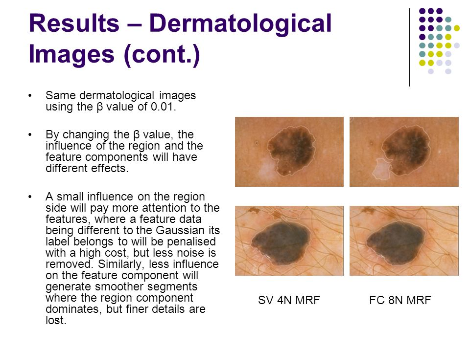 Results – Dermatological Images (cont.) Same dermatological images using the β value of 0.01.