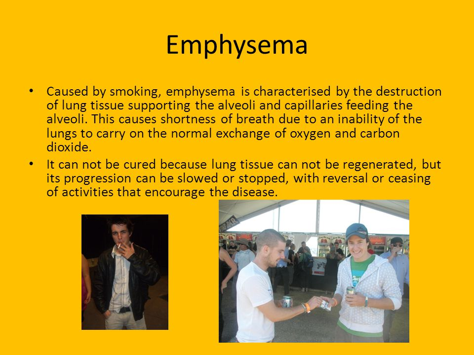 Emphysema Caused by smoking, emphysema is characterised by the destruction of lung tissue supporting the alveoli and capillaries feeding the alveoli.