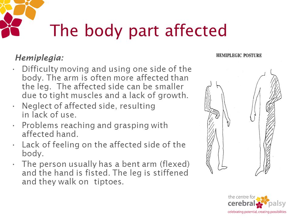 The body part affected Hemiplegia: Difficulty moving and using one side of the body.