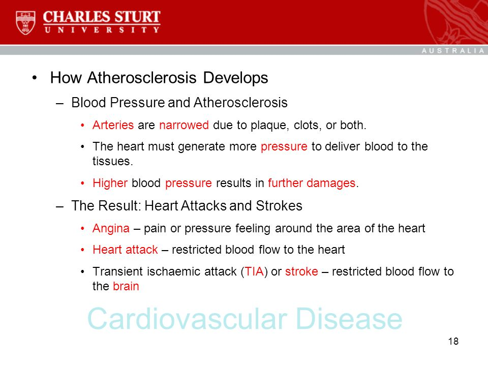 Cardiovascular Disease How Atherosclerosis Develops –Blood Pressure and Atherosclerosis Arteries are narrowed due to plaque, clots, or both. The heart
