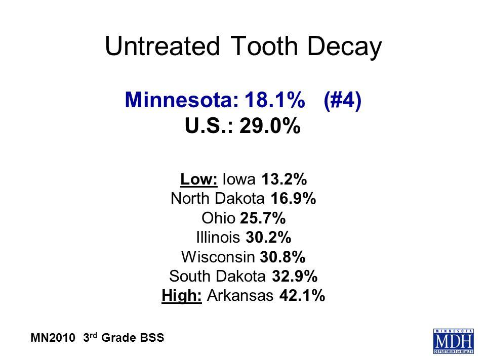 Untreated Tooth Decay Minnesota: 18.1% (#4) U.S.: 29.0% Low: Iowa 13.2% North Dakota 16.9% Ohio 25.7% Illinois 30.2% Wisconsin 30.8% South Dakota 32.9% High: Arkansas 42.1% MN2010 3 rd Grade BSS