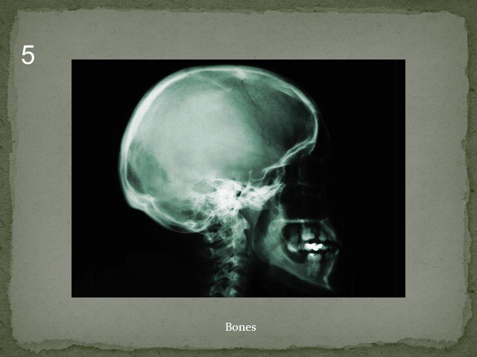 Bones 5