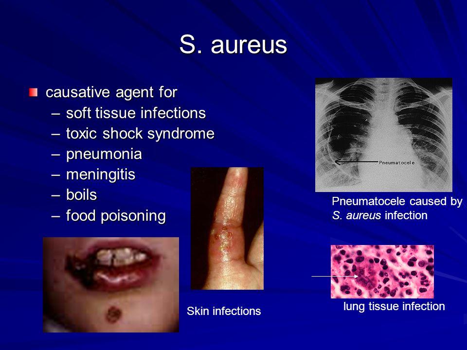 S. aureus causative agent for –soft tissue infections –toxic shock syndrome –pneumonia –meningitis –boils –food poisoning Skin infections Pneumatocele