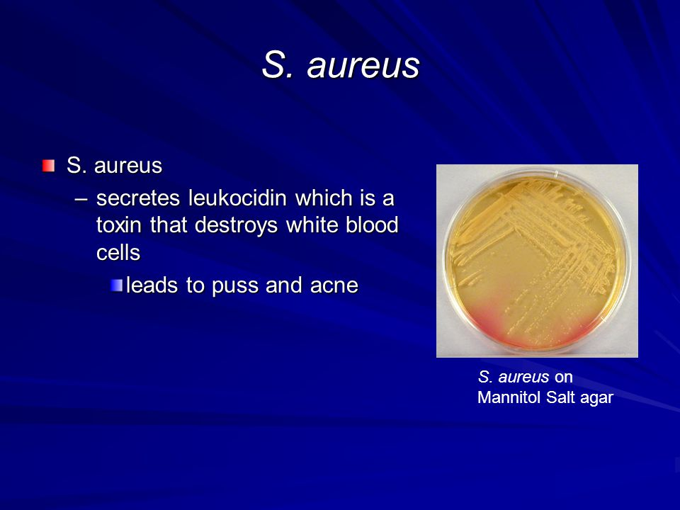 S. aureus –secretes leukocidin which is a toxin that destroys white blood cells leads to puss and acne S. aureus on Mannitol Salt agar