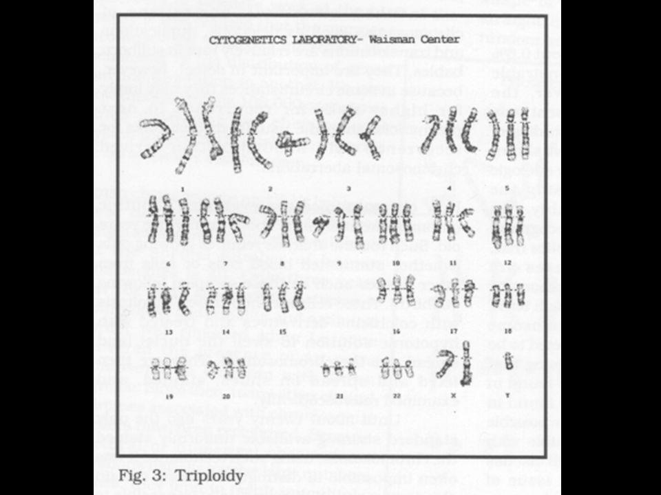 Trisomy(21)Down Syndrome Monosomy:Turner Syndrome Hexapoid:Wheat Trisomy(13)Patau's Syndrome Triploid:Apples Polyploid:chrysanthamums