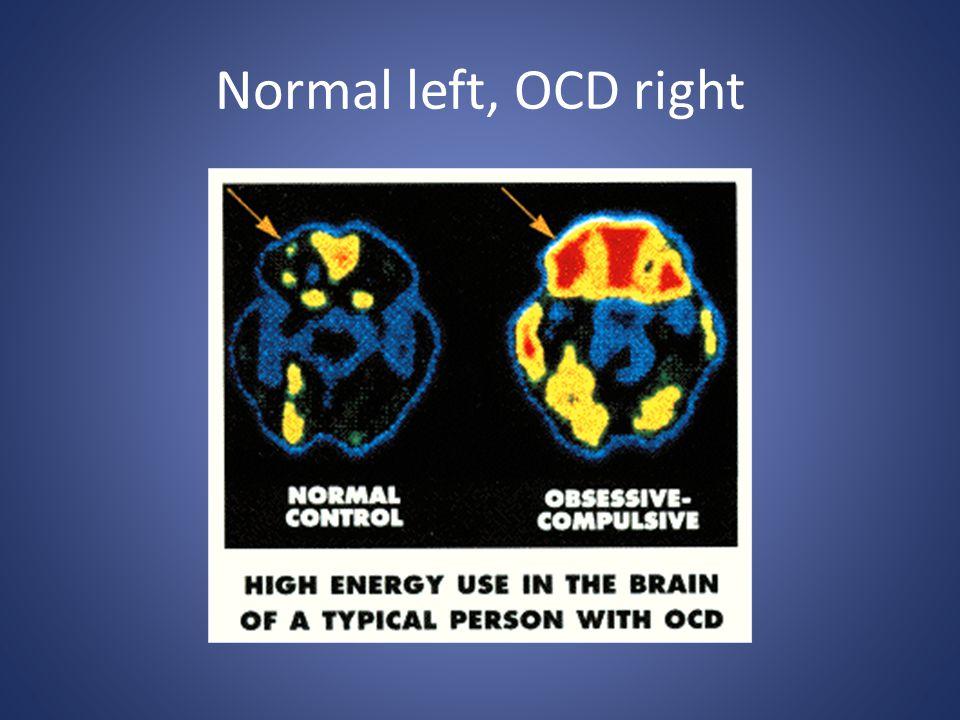 Normal left, OCD right