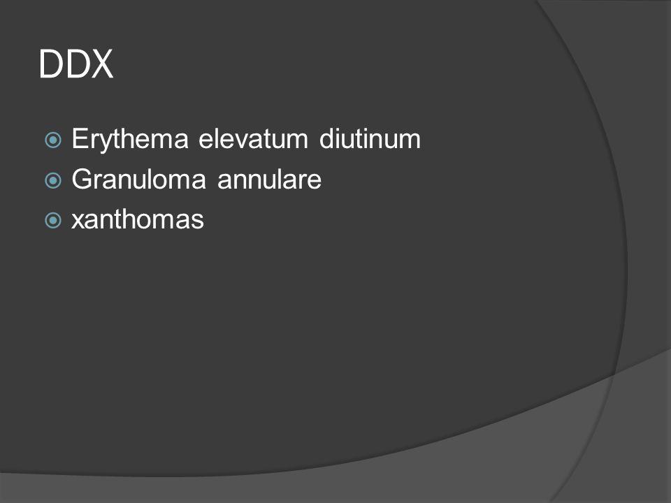 DDX  Erythema elevatum diutinum  Granuloma annulare  xanthomas