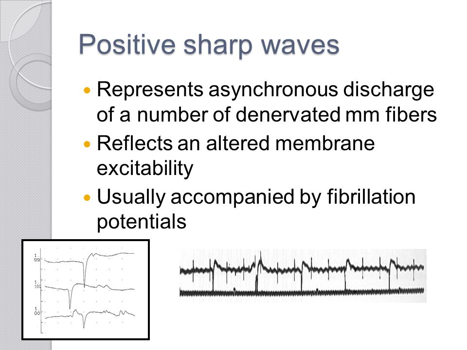 Positive sharp waves Represents asynchronous discharge of a number of denervated mm fibers Reflects an altered membrane excitability Usually accompani