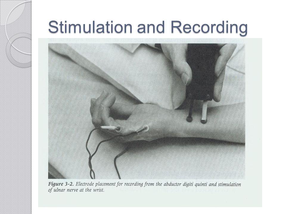 Stimulation and Recording