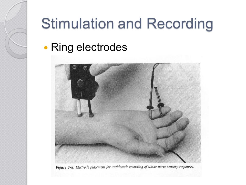 Stimulation and Recording Ring electrodes