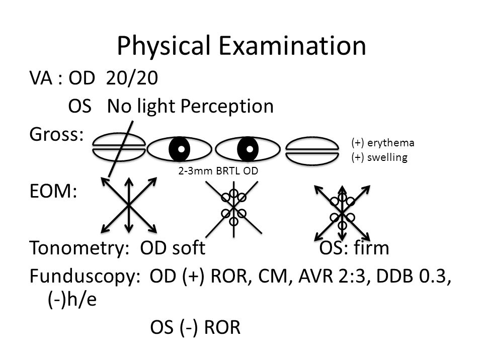 Physical Examination VA : OD 20/20 OS No light Perception Gross: EOM: Tonometry: OD softOS: firm Funduscopy: OD (+) ROR, CM, AVR 2:3, DDB 0.3, (-)h/e