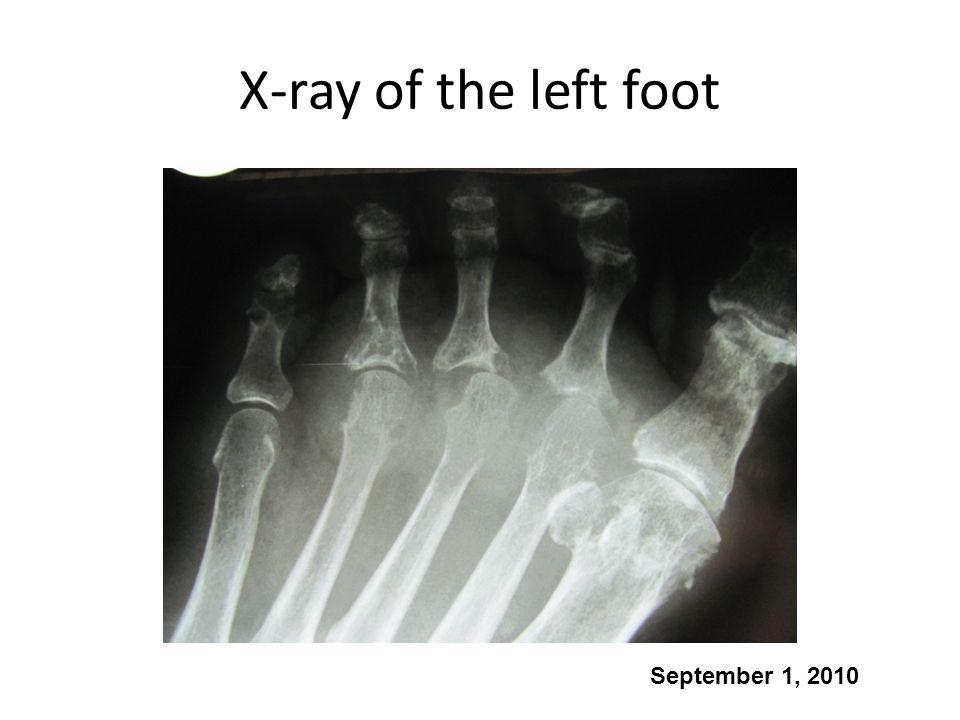 X-ray of the left foot September 1, 2010