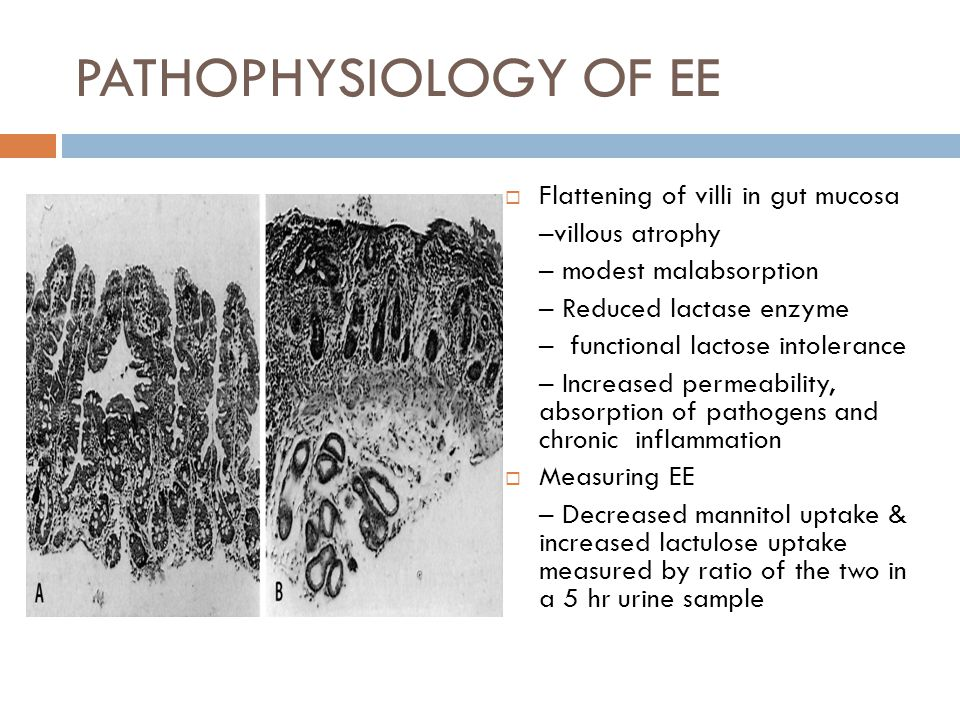 PATHOPHYSIOLOGY OF EE  Flattening of villi in gut mucosa –villous atrophy – modest malabsorption – Reduced lactase enzyme – functional lactose intolerance – Increased permeability, absorption of pathogens and chronic inflammation  Measuring EE – Decreased mannitol uptake & increased lactulose uptake measured by ratio of the two in a 5 hr urine sample
