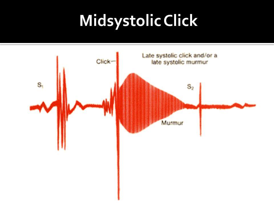 Midsystolic Click