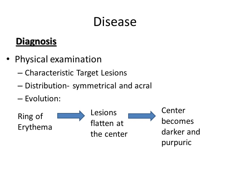 Disease Physical examination – Characteristic Target Lesions – Distribution- symmetrical and acral – Evolution: Diagnosis Ring of Erythema Lesions fla