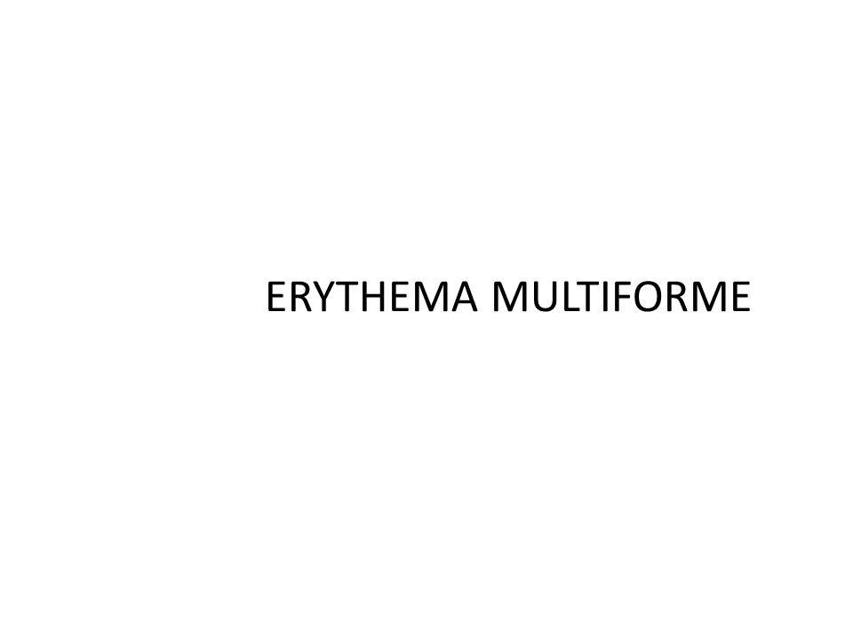 Erythema Multiforme Salient Features EM Minor: Young adults EM Major: Eruption occurs at all ages 25 year old female Sharply marginated erythematous macules Become raised edematous papules in 24 to 48 hours Central area may darken and form blisters Multiple erythematous papules, macules and patches with dark centers 5 days duration Appearance of multiple pruritic macules and papules after 2 days sites of predilection Dorsum of hands Dorsum of feet Extensor limbs Elbows Knees Palms Soles Trunk Flexor surface of both forearms which gradually spread to the face, trunk and thighs, palms and soles