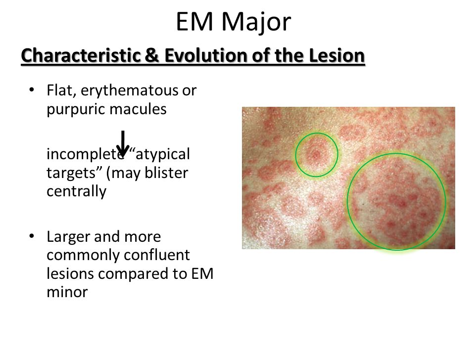 """EM Major Flat, erythematous or purpuric macules incomplete """"atypical targets"""" (may blister centrally Larger and more commonly confluent lesions compar"""