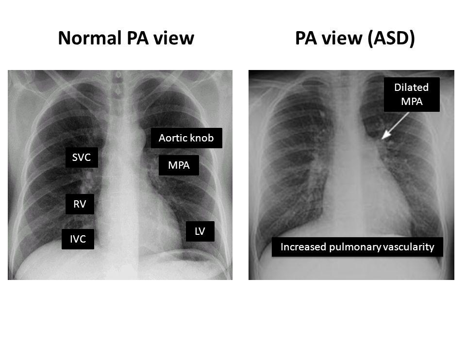 Normal PA viewPA view (ASD) SVC RV IVC Aortic knob MPA LV Dilated MPA Increased pulmonary vascularity