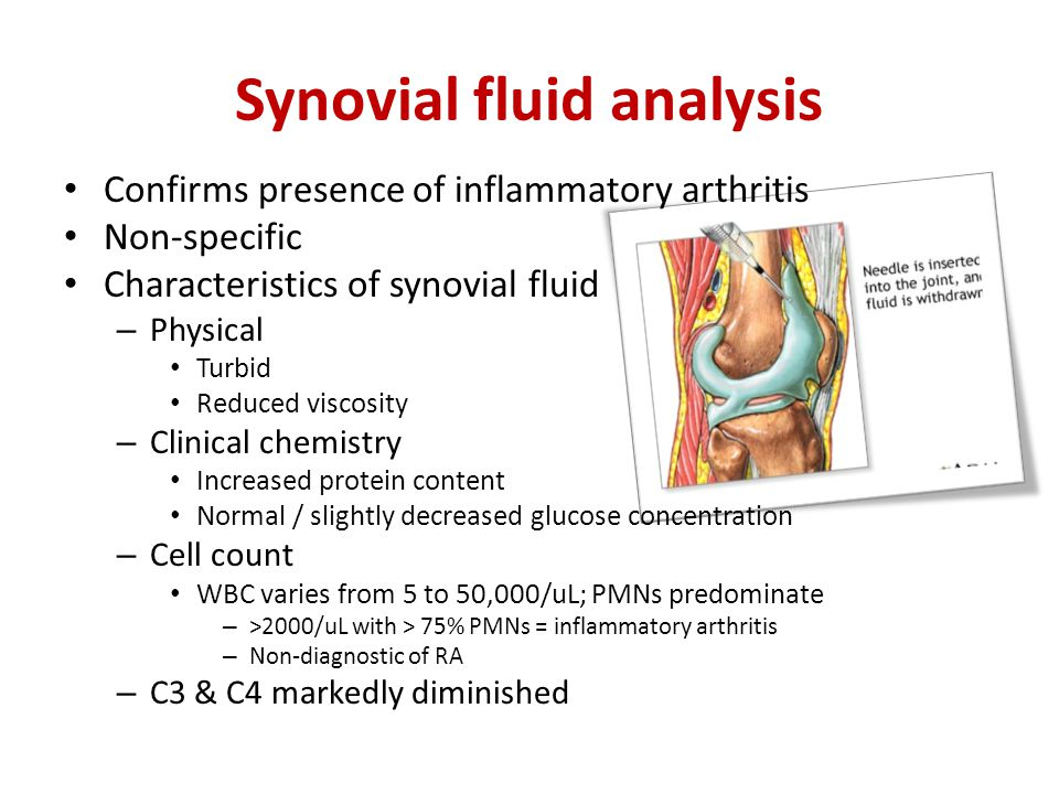 Confirms presence of inflammatory arthritis Non-specific Characteristics of synovial fluid – Physical Turbid Reduced viscosity – Clinical chemistry Increased protein content Normal / slightly decreased glucose concentration – Cell count WBC varies from 5 to 50,000/uL; PMNs predominate – >2000/uL with > 75% PMNs = inflammatory arthritis – Non-diagnostic of RA – C3 & C4 markedly diminished Synovial fluid analysis