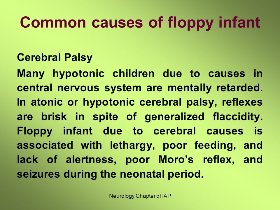 Common causes of floppy infant Cerebral Palsy Many hypotonic children due to causes in central nervous system are mentally retarded. In atonic or hypo