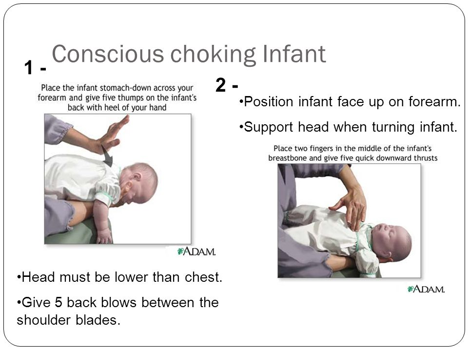 Conscious choking Infant Head must be lower than chest. Give 5 back blows between the shoulder blades. 1 - 2 - Position infant face up on forearm. Sup