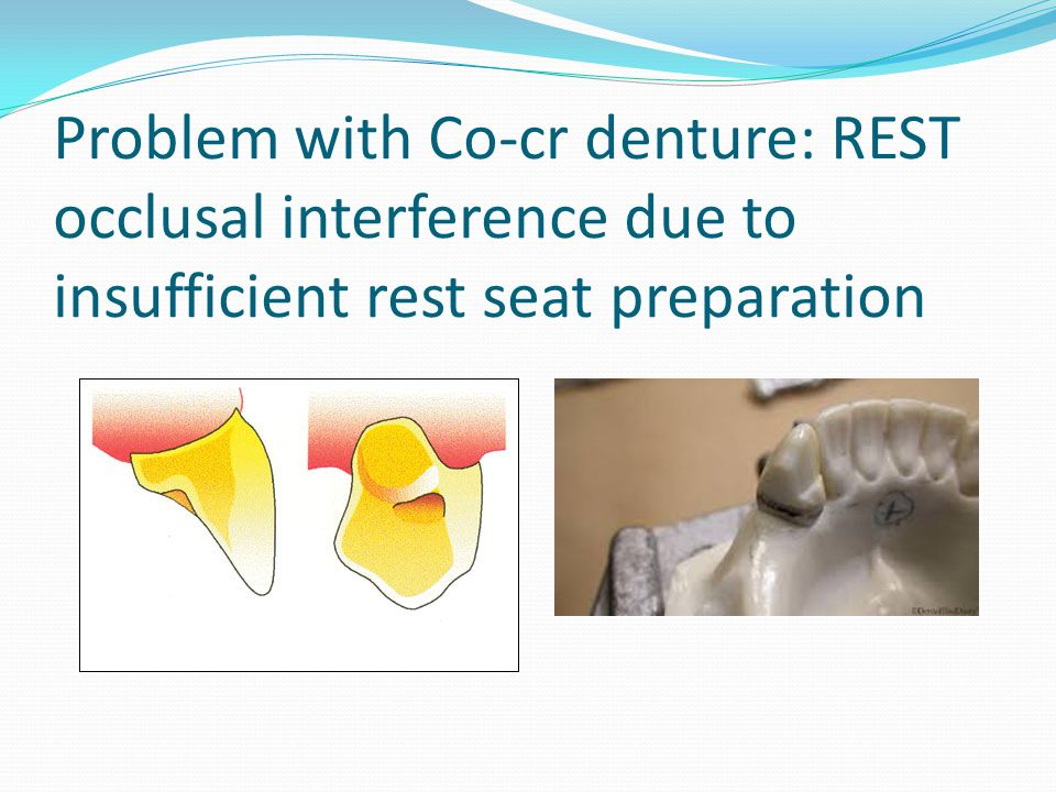 Problem with Co-cr denture: REST occlusal interference due to insufficient rest seat preparation
