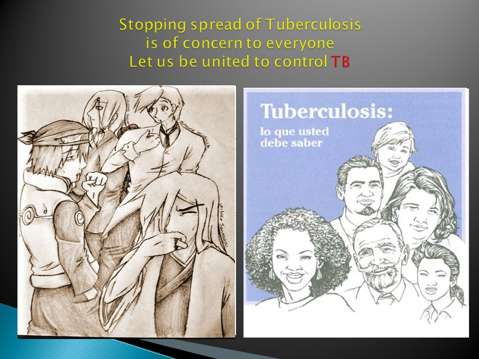 _________It is Rotary alone that can control and create awareness about TB.