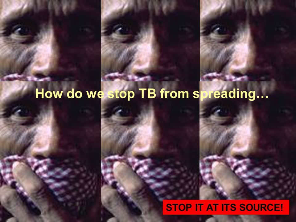 How do we stop TB from spreading… STOP IT AT ITS SOURCE!