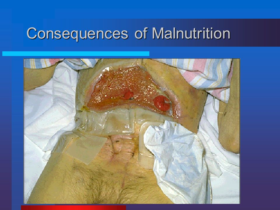 Consequences of Malnutrition  Loss of lean body mass  Poor wound healing, anastomotic breakdown  Compromised immune defense  Impaired organ functi