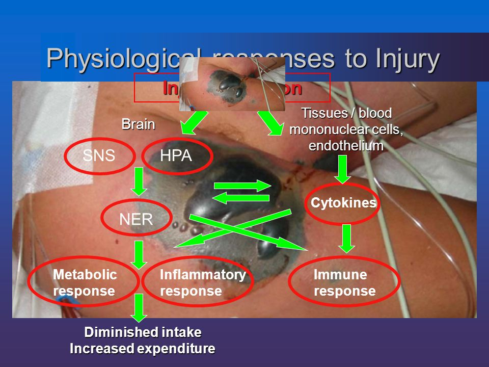 Physiological responses to Injury Injury, infection Diminished intake Increased expenditure Tissues / blood mononuclear cells, endothelium Brain SNSHP