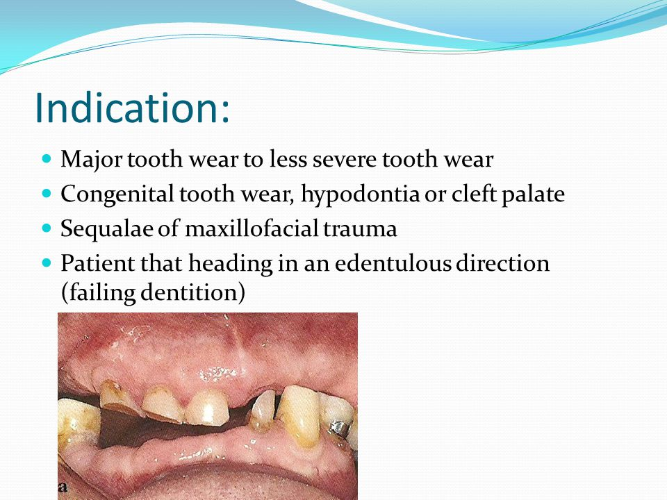 Decisions in treatment planning Should we provide immediate dentures at all time.